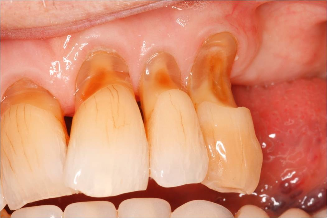 different types of tooth surface loss mark hill dental surgeon